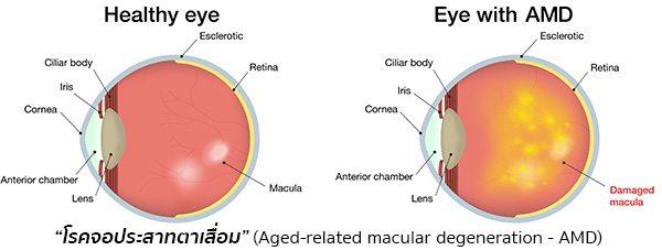 โรคจอประสาทตาเสื่อม
